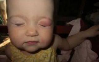 Почему могут слезиться глаза у ребенка и что делать