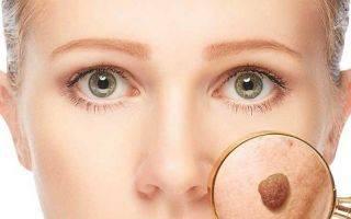 Бельмо на глазу: причины возникновения и как лечить глаз