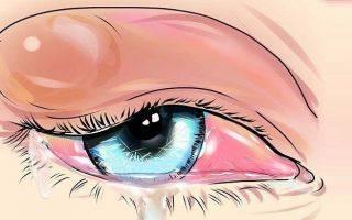 Ацикловир при ячмене на глазу таблетки