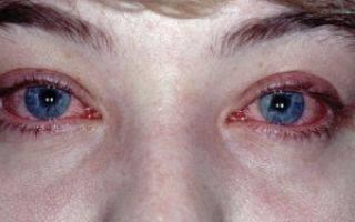 Травма роговицы глаза лечение последствия