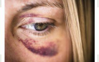 Почему появляются синяки под глазами у мужчин и как от них избавиться?