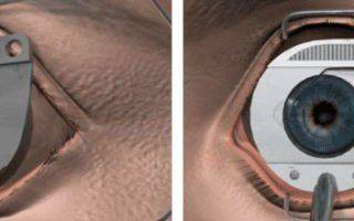 LASIK (Ласик): операция на глаза