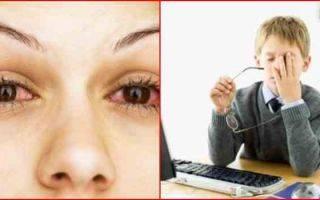 Основные причины покраснения и боли в глазу