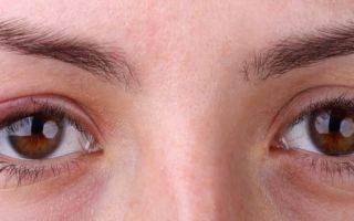 Что нужно знать об аллергии на веках глаз