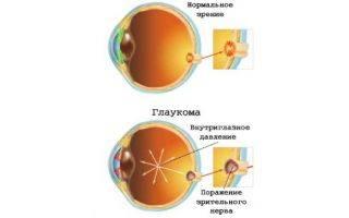 Как применять глазные капли комбиган