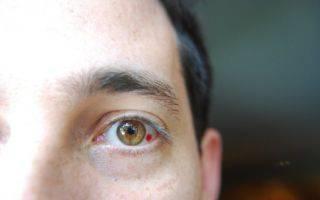 Чп на глазу: красное пятно на глазном белке и что с ним делать