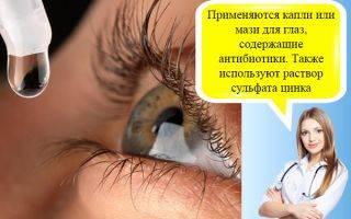 Признаки, симптомы и лечение острого конъюнктивита