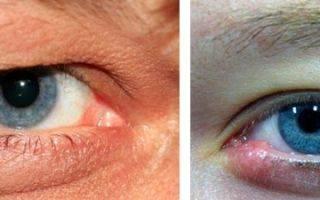 К какому врачу обращаться при внутреннем ячмене на глазу