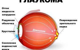 Как осветлить белок глаза в домашних условиях. отбеливающие капли для глаз
