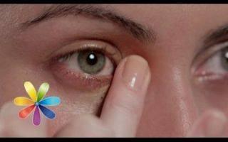 Почему вокруг глаз появились желто-синие круги?