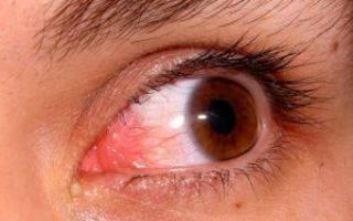 Герпес на глазу: фото, лечение и симптомы