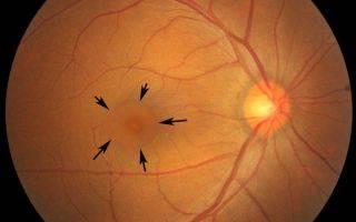 Центральная серозная хориоретинопатия: симптомы, причины, методы борьбы