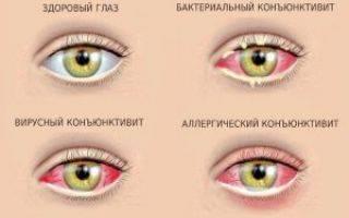 Застудил глаз: симптомы, лечение лекарственными препаратами и народными средствами