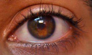 Уплотнение на верхнем веке глаза