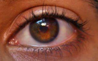Уплотнение или шишка на верхнем веке глаза