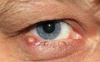 Чирей или фурункул у глаза