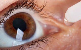 Правила применения глазных гормональных капель