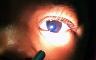 Что такое атрофия сетчатки глаза