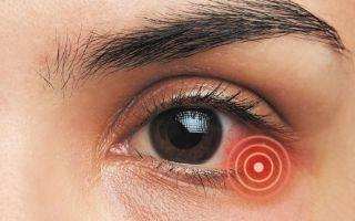 Глазные капли косопт для нормализации внутриглазного давления