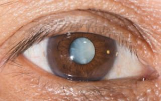 Затуманивание зрения: причины и лечение