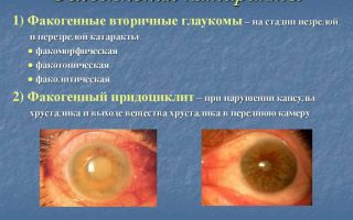 Начальная катаракта: как она проявляется и лечится