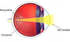 Лазерная коагуляция: ограничения после операции