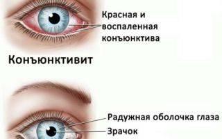 Минусы и плюсы контактных линз