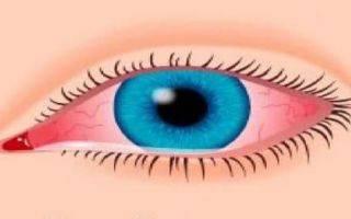 Полудан, глазные капли: инструкция по применению, отзывы и аналоги, цены в аптеках