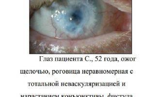 Глазные капли актипол: инструкция, цена, отзывы