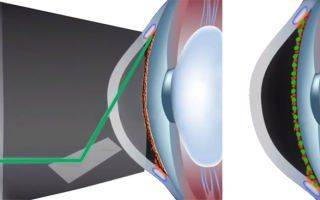 Лазерная трабекулопластика