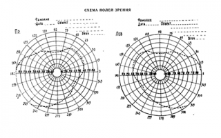 Система определения остроты зрения в целях врачебной экспертизы