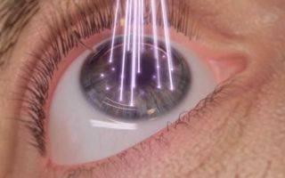 В молодости делали операцию на глаза. можно ли повторно делать, если зрение снова упало?