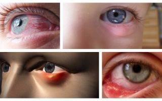 Воспаление нижнего века глаза: виды, причины и лечение