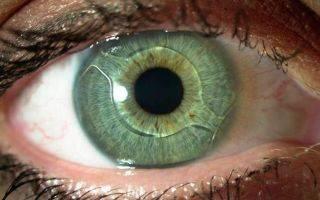 Какой хрусталик при катаракте лучше: импортный или отечественный