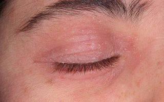 Все о лечении дерматита глаз и на веках. сложно, но можно
