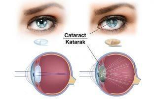 Причины и симптомы слепоты