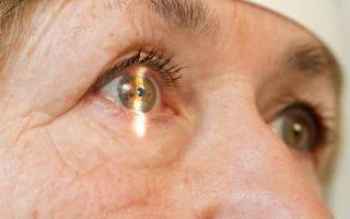 Интракапсулярная экстракция катаракты (иэк) с имплантацией иол