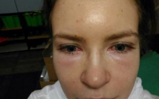 Как избавиться от синяков под глазами после блефаропластики?