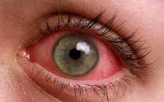 Назначение и правильное использование глазных капель оквис