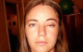 Красные глаза при простуде