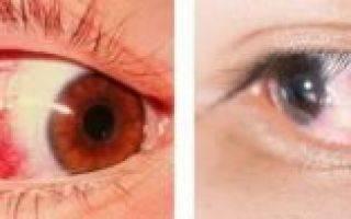 Эписклерит глаза: описание, симптомы и лечение заболевания