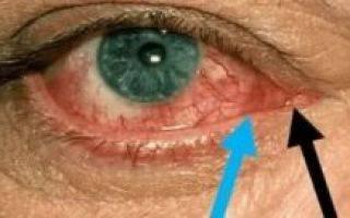 Лечение и профилактика хемоза конъюнктивы