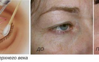 Отзывы о лазерной шлифовке шрамов и особенности процедуры