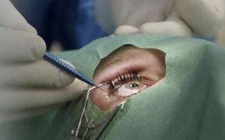 Перечень противопоказаний к лазерной коррекции зрения