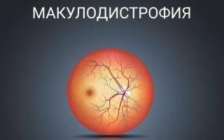 Народные средства лечения при дистрофии макулы глаза