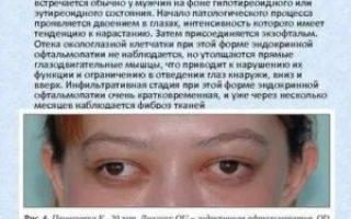 Миопатия глаз