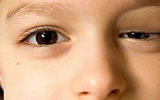 Как распознать и лечить инфекции глаз