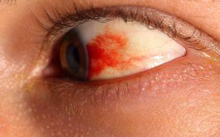 Красное пятно на глазном яблоке: причины, симптомы, лечение, восстановительный период и советы окулиста