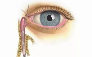 Тобрамицин капли для глаз: как применять согласно инструкции, отзывы