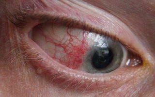 Эписклерит: все о заболевании
